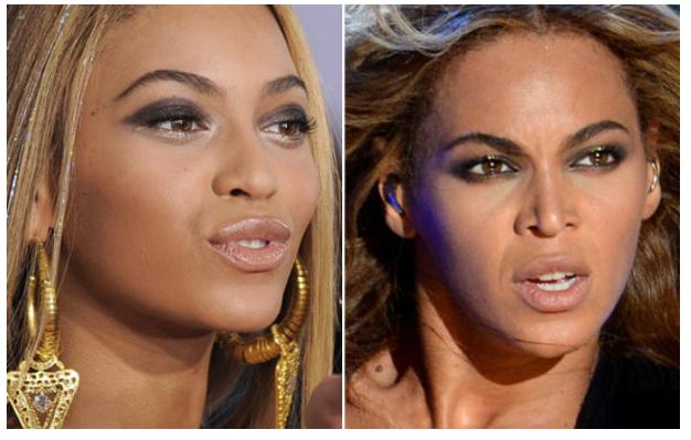 Momento papparazzi: o novo nariz da Beyoncé (ou não?!)